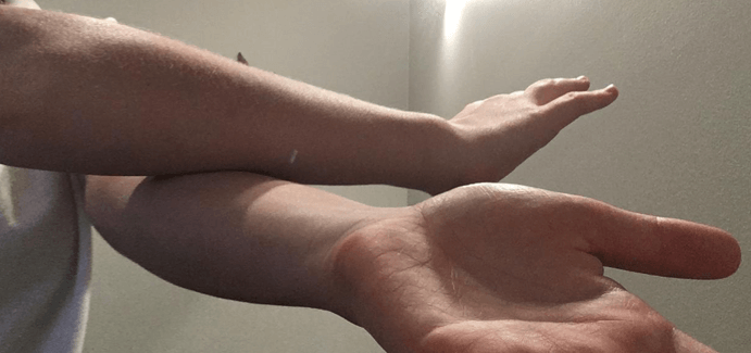 CK Health and Wellbeing - Chronic Pain - Forearms Self Care Self Massage