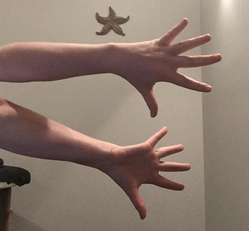 CK Health and Wellbeing - Chronic Pain - Forearms Self Care Twisty Grip 2
